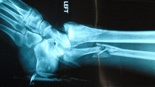 Compound Injury xrays