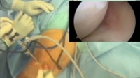 Repair of Meniscus of the Knee - Arthroscopically Assisted