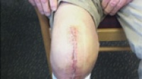 Total Knee Replacement - 2 weeks post surgery