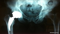 Hip Arthroplasty Pre-Surgery Information