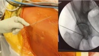 Hip Arthroscopy with Bumpectomy and Labral Repair - Operation