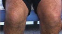 High Tibial Osteotomy - 8 months post surgery